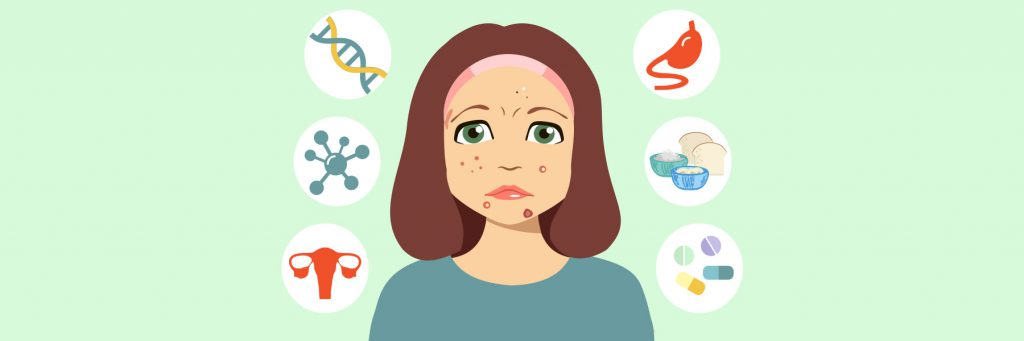 There are many causes of acne and different treatments target each of these causes.