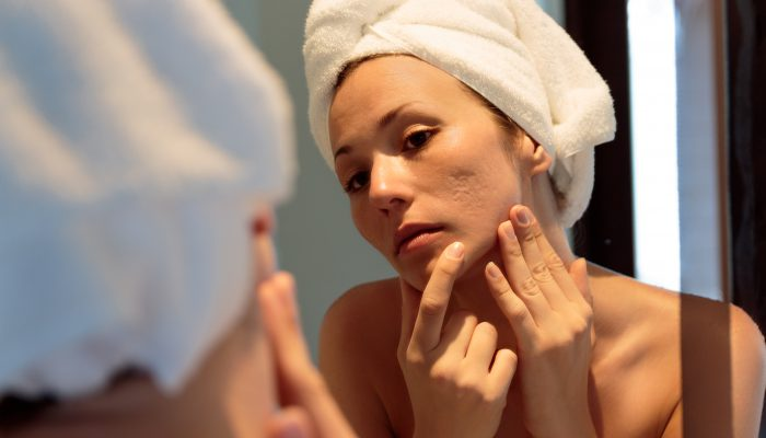 acne scars on your face